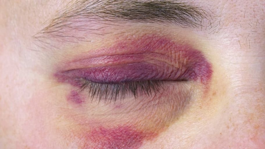 A human eye suffers from a large purple bruise. (Photo by Photo courtesy of iStock)