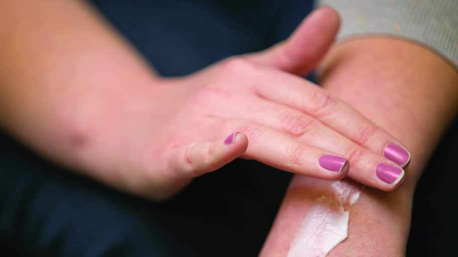 woman applying lotion to dry skin