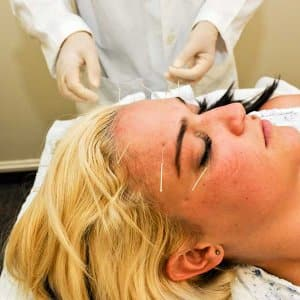 Many turn to acupuncture as an alternative medicine to aid illness and relieve stress. This treatment is even covered by some insurance companies.