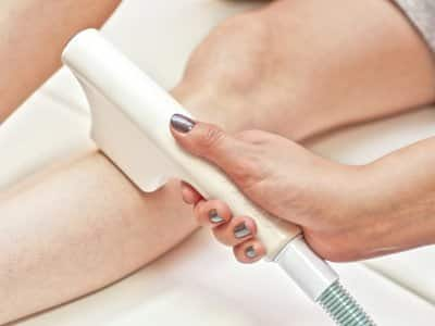 doctor performs laser hair removal on leg
