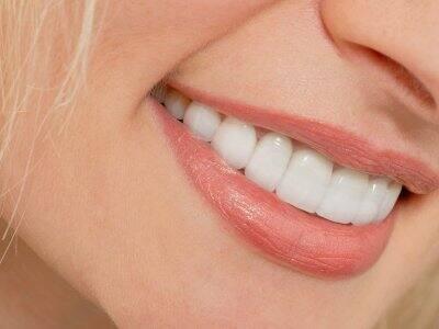 Lumineers on teeth of smiling woman