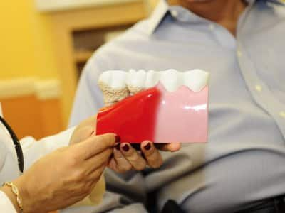 A dentist shows patient model of teeth with gum disease.