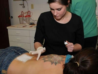 using ointment on back for laser tattoo removal