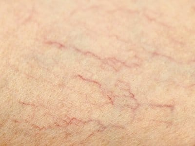 closeup of red veins lines on skin