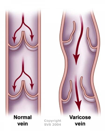 Illustration courtesy of Society for Vascular Surgery