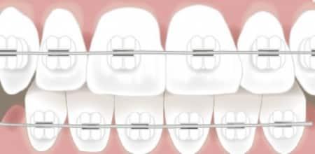 4 Types Of Dental Braces Angie S List