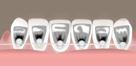 interlingual braces
