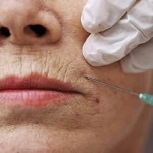 gloved hand injecting needle in woman's upper lip area