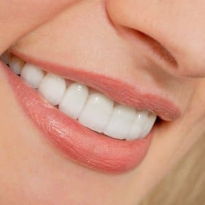 a woman with porcelain veneers