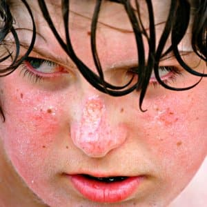 child's sunburned face