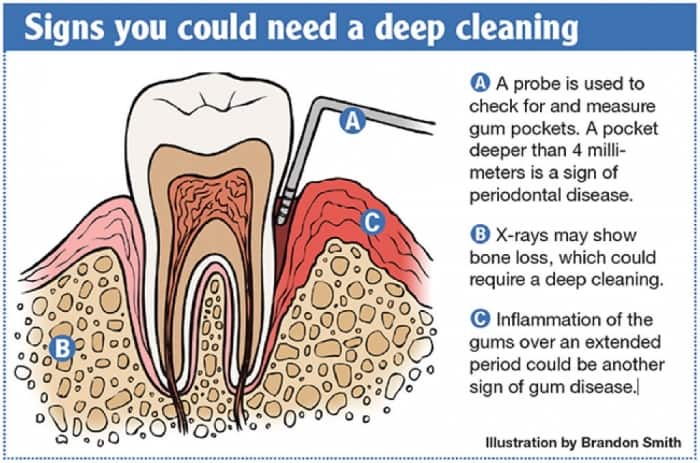 When Do You Need Dental Deep Cleaning? | Angie's List
