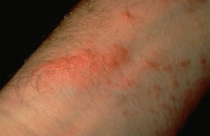picture of poison ivy rash on arm