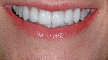 After Tooth Veneers Installed