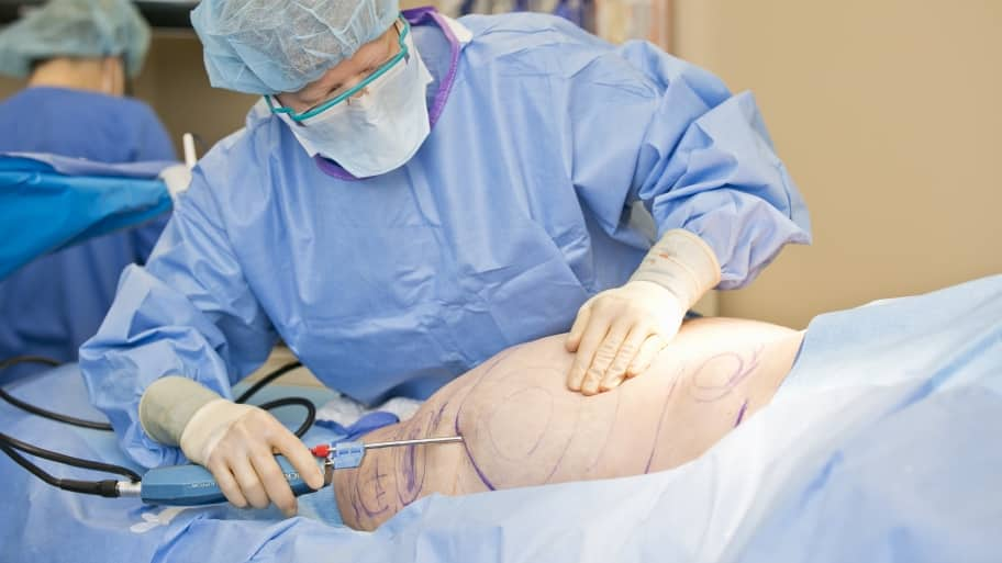 Considering Liposuction? Know the Ins and Outs | Angie's List