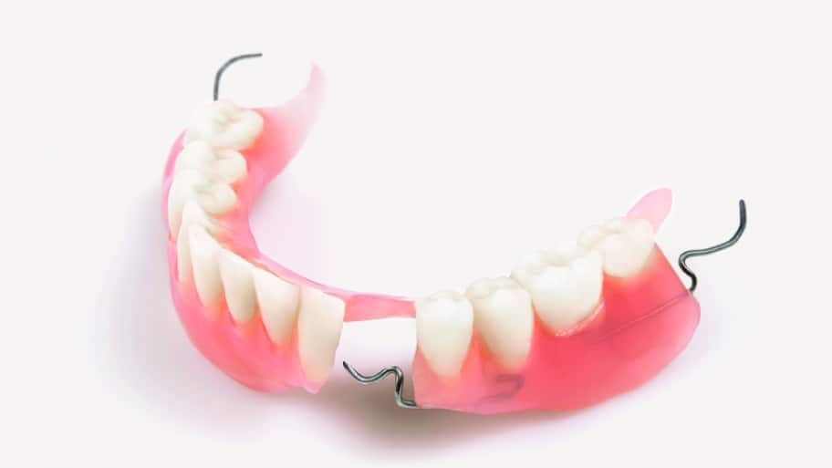 5 questions to ask your dentist about dentures angies list partial or complete dentures can help patients suffering from tooth loss solutioingenieria Image collections
