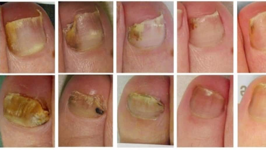 Tips to Trip Up Toenail Fungus | Angie\'s List