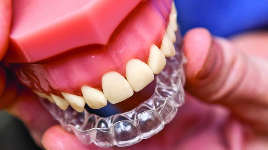 Dentist shows off Invisalign teeth aligners (Photo by Brandon Smith)