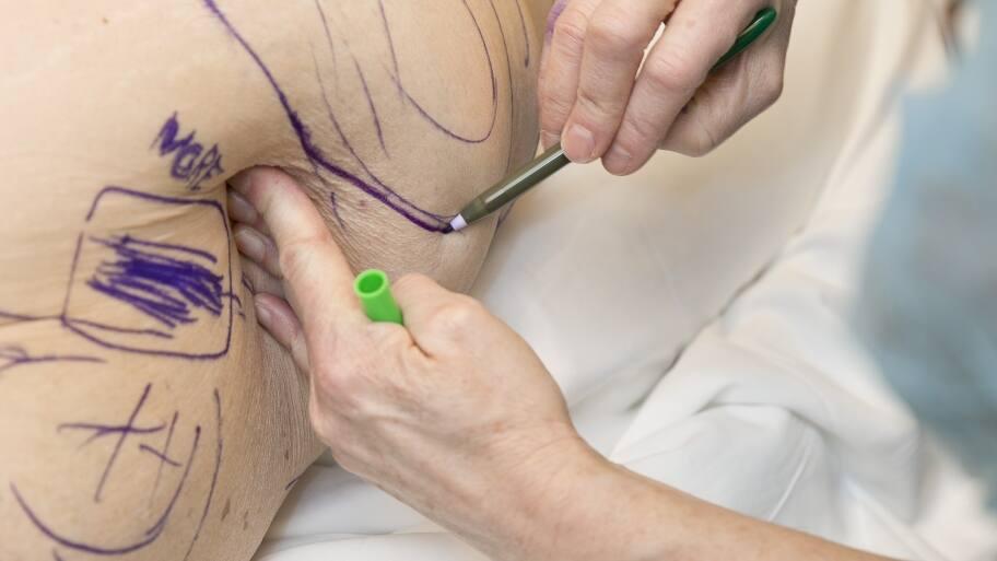 liposuction procedure on patient