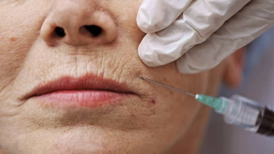 Can a Dermatologist Help My Skin Look Younger?   Angie's List