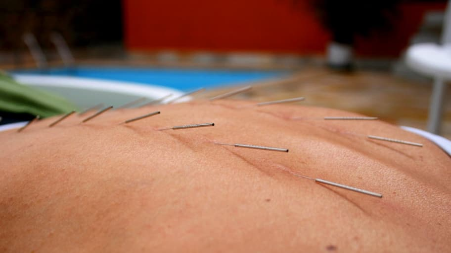 acupuncture needles in your back