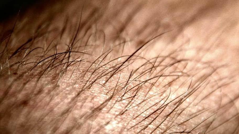 arm hair