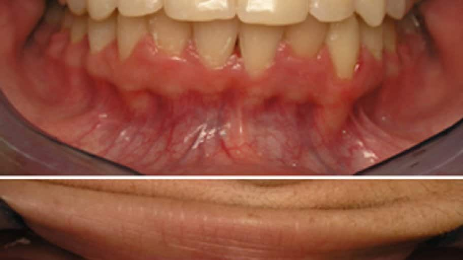 A straighter set of teeth also mean the teeth last longer, Eslampour says. (Photo courtesy of Platinum Dental)