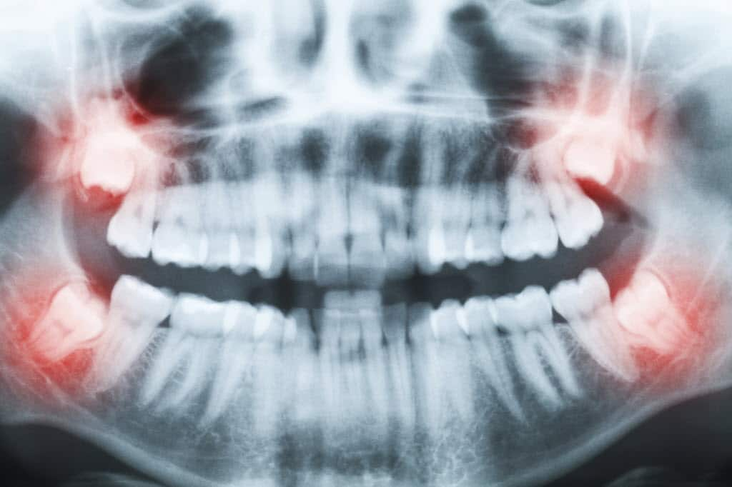 7 Tips to Recover from Wisdom Teeth Removal | Angie's List