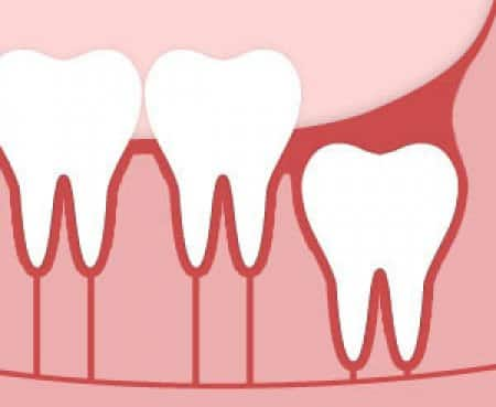 6 Important Wisdom Teeth Questions Answered Angie S List