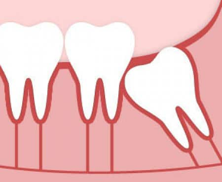 Illustration showing how an impacted wisdom tooth can erupt at odd angle
