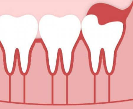 Illustration showing how wisdom teeth can impact soft tissue in the gums