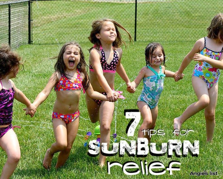 7 tips for sunburn relief