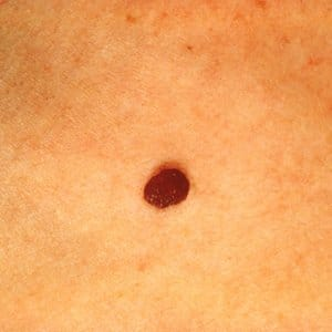 normal looking mole