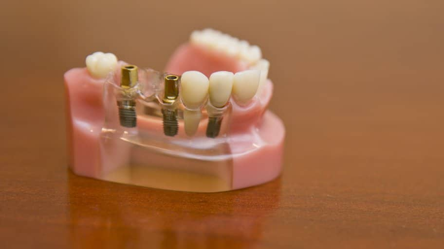 dental implants shown side by side with teeth
