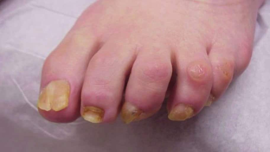 What Treatments Work for Toenail Fungus | Angie\'s List