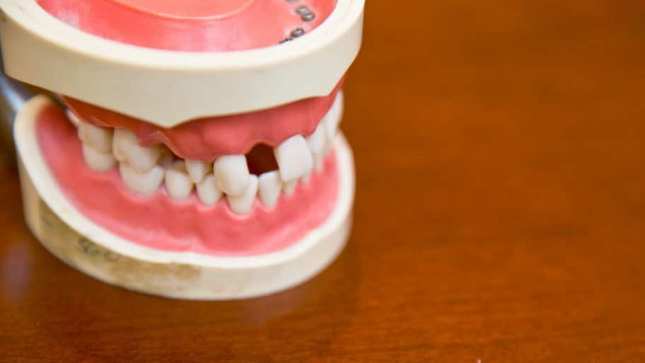 model of gap teeth