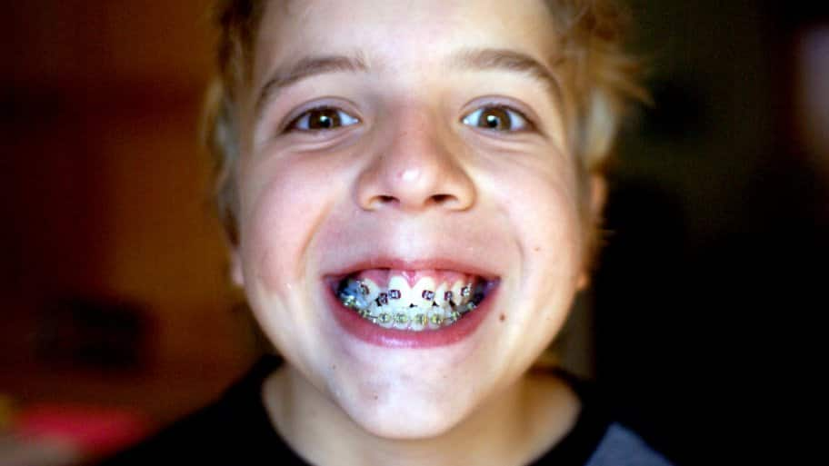 A boy showing off his the braces on his teeth