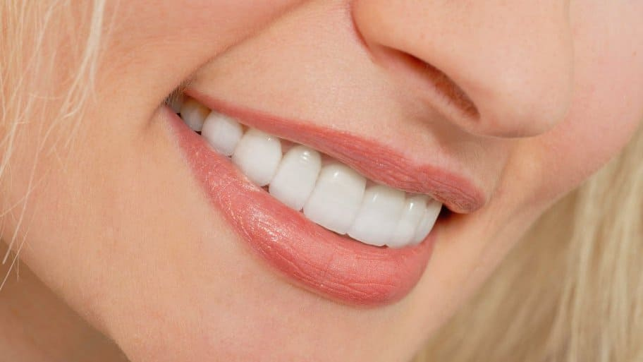 Dentures Near Me >> What's the Cost of Lumineers vs. Veneers | Angie's List