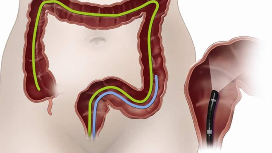 Colonoscopy illustration