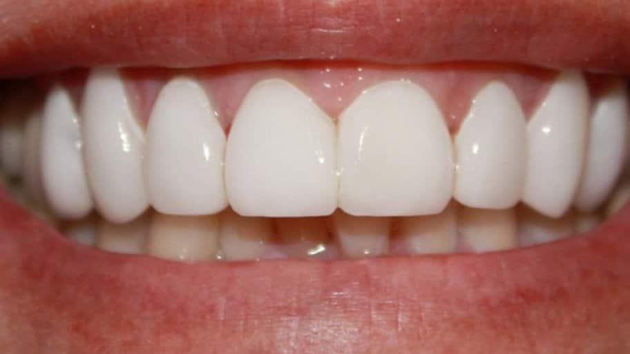 Understanding The Risks And Prevention Methods Of Gum Disease Is Essential For Dental Health